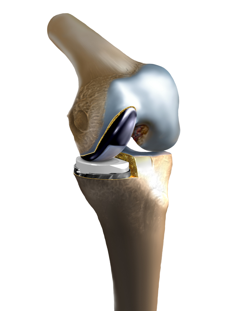 Unicompartmental Knee Illustration