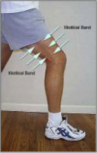 Iliotibial band noted prominently along the lateral thigh.Lateral hip stabilizers.