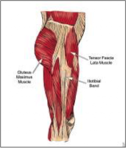 Lateral hip stabilizers.